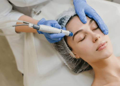 La laser-terapia in dermatologia: cos'è e a cosa serve?